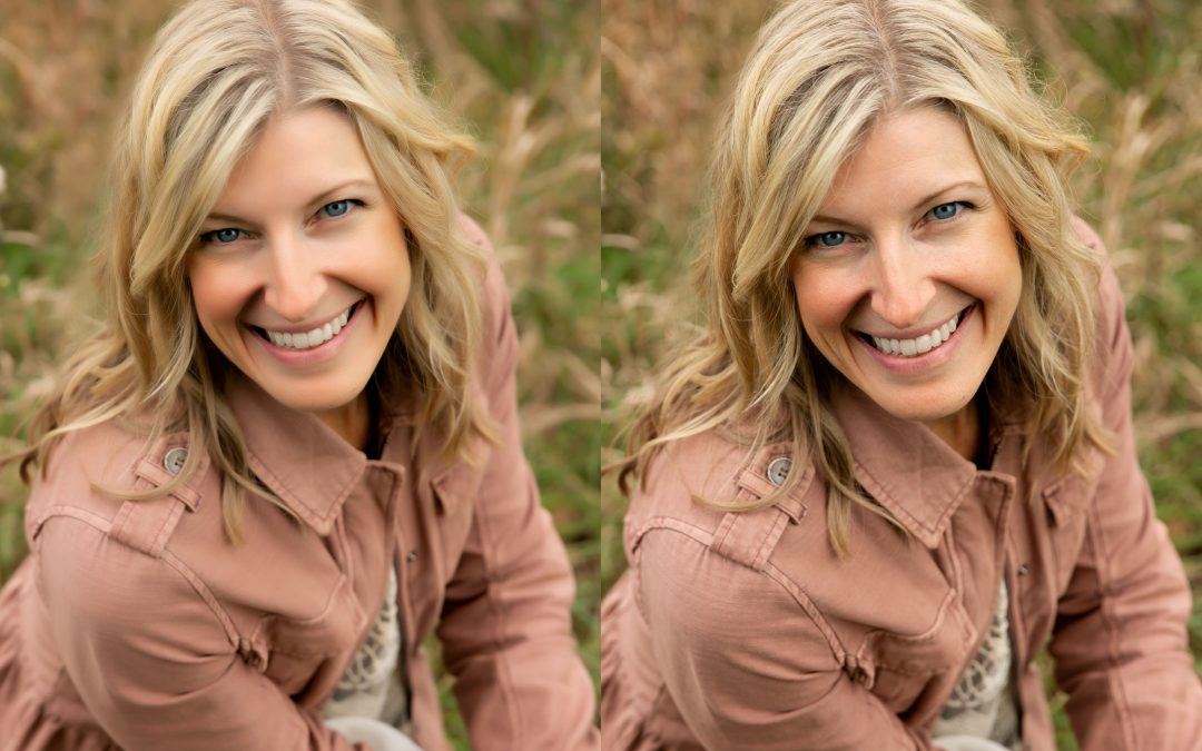 Blonde woman smiling for camera demonstrating plastic skin vs. natural looking skin